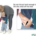 heimlich-maneuver-on-conscious-child-1