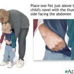 heimlich-maneuver-on-conscious-child